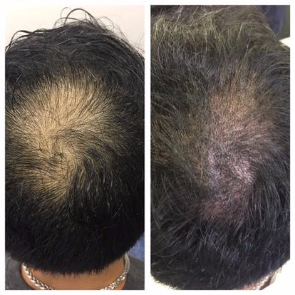 Dermopigmentation, avant après, pigments minéraux