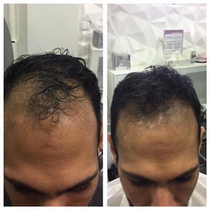 greffe, dermopigmentation, cheveux, cuir chevelu, homme