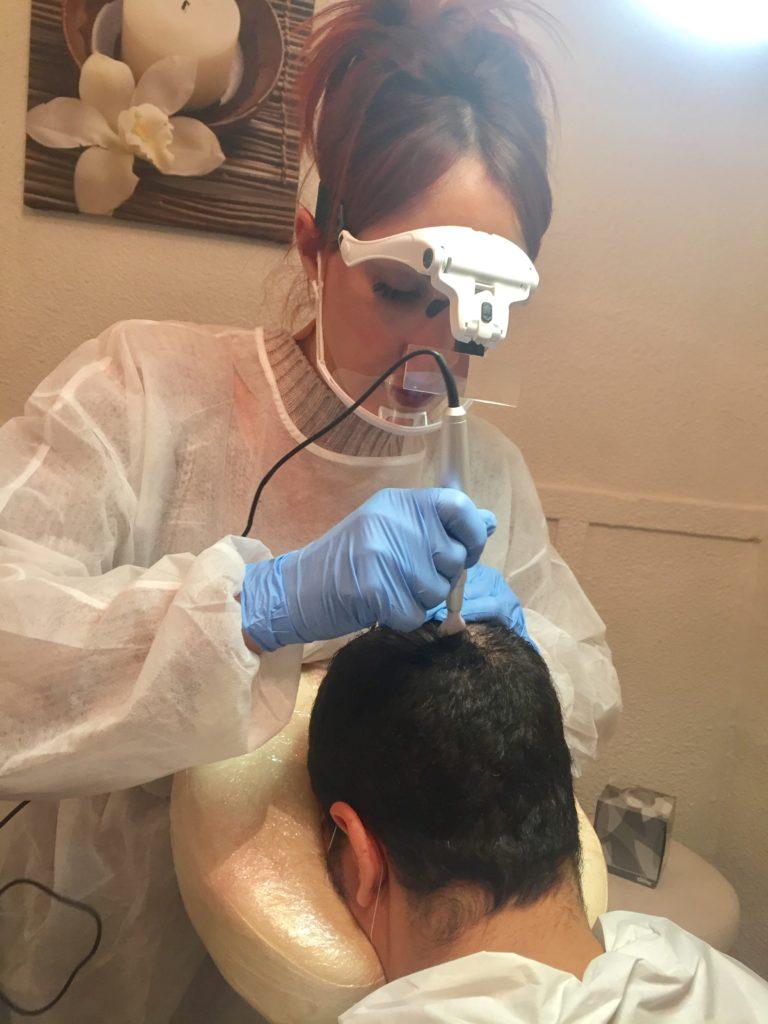 dermopigmentation, pigments mineraux, cuir chevelu Dermopigmentation capillaire