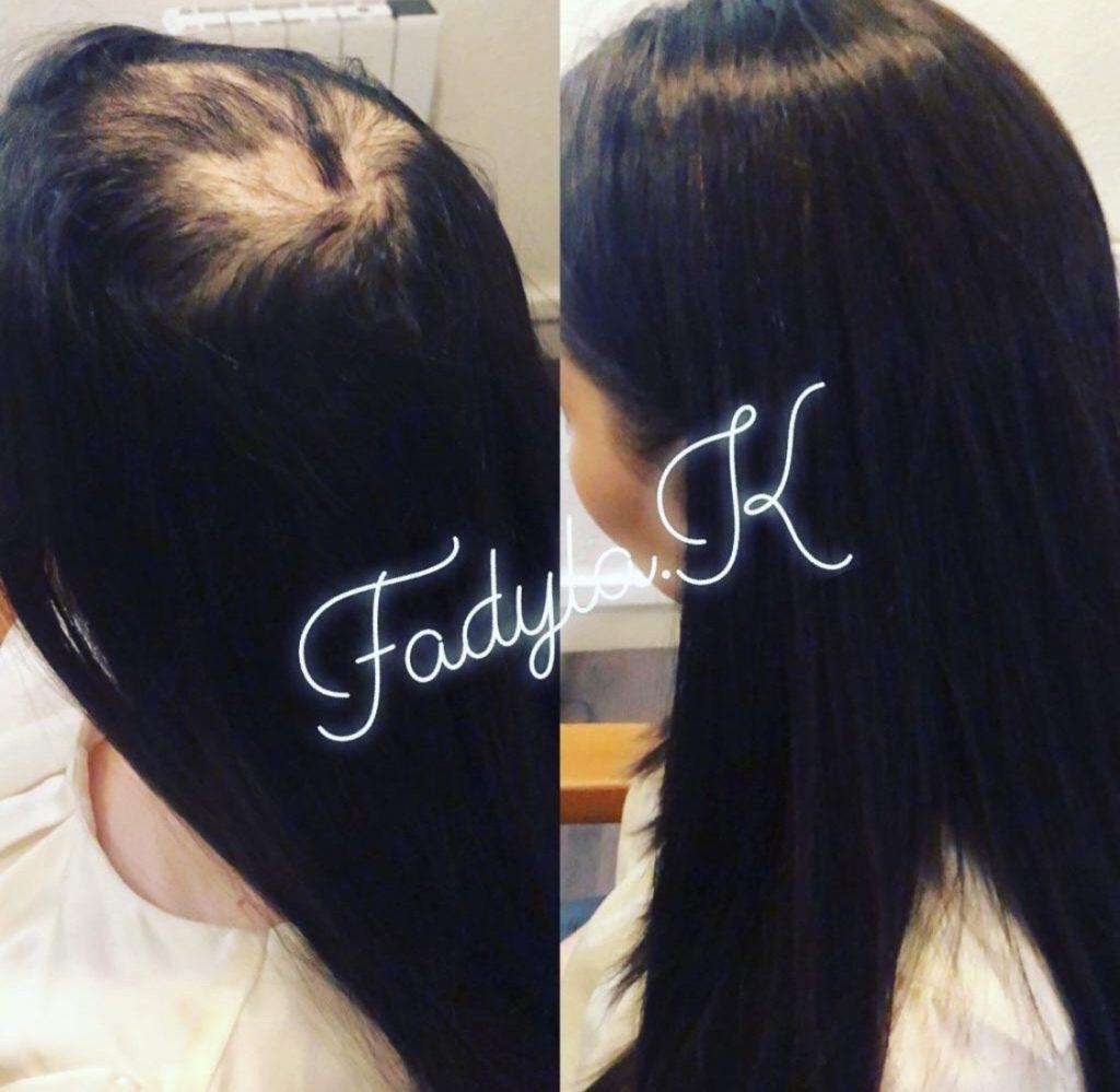 alopecie, complement capillaire, femme, cheveux longs Top secret / Volumateur